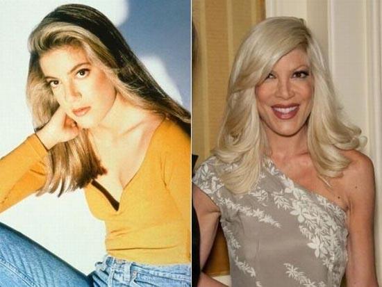 Beverly Hills 90210: Οι ηθοποιοί τότε και σήμερα