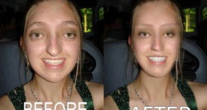 Πριν & μετά το Photoshop (Photos)