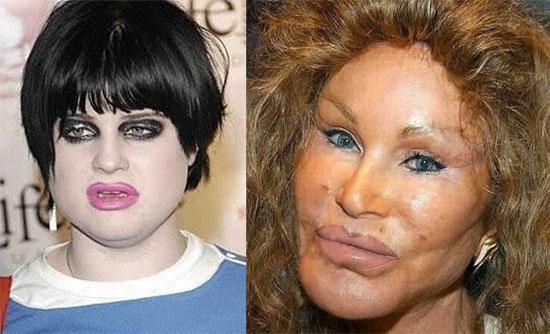 Οι πιο άσχημοι celebrities