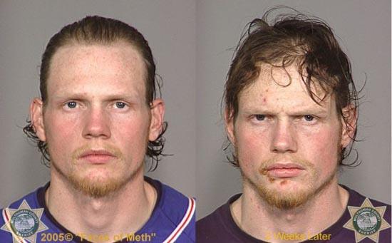 Άνθρωποι πριν και μετά την χρήση ναρκωτικών (1)