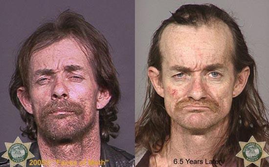 Άνθρωποι πριν και μετά την χρήση ναρκωτικών (3)
