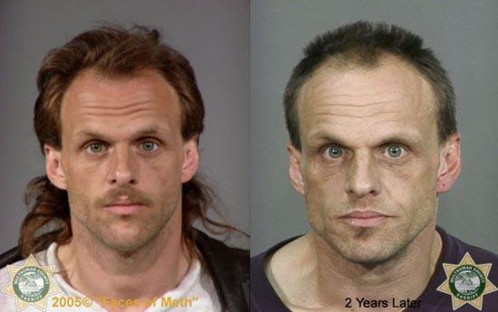 Άνθρωποι πριν και μετά την χρήση ναρκωτικών (6)