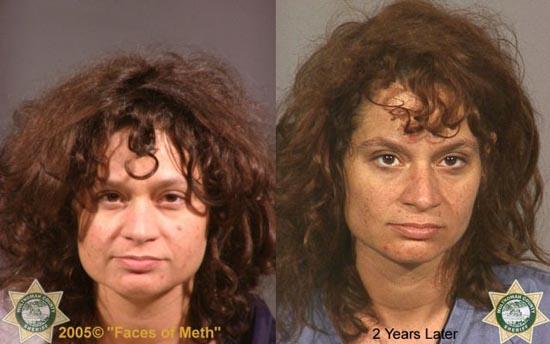 Άνθρωποι πριν και μετά την χρήση ναρκωτικών (11)