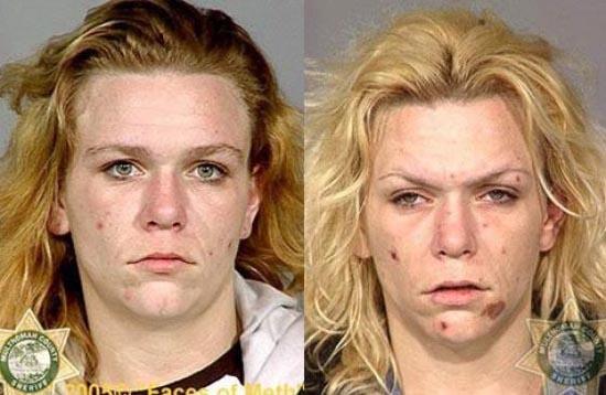 Άνθρωποι πριν και μετά την χρήση ναρκωτικών (15)