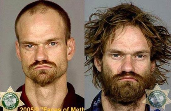 Άνθρωποι πριν και μετά την χρήση ναρκωτικών (16)