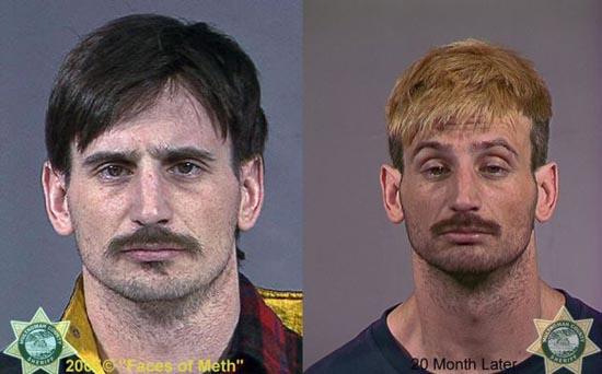 Άνθρωποι πριν και μετά την χρήση ναρκωτικών (18)