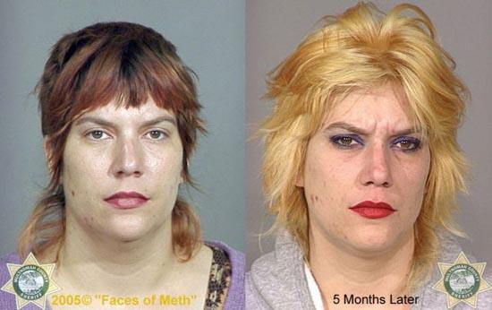 Άνθρωποι πριν και μετά την χρήση ναρκωτικών (4)