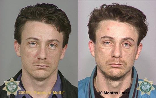Άνθρωποι πριν και μετά την χρήση ναρκωτικών (5)