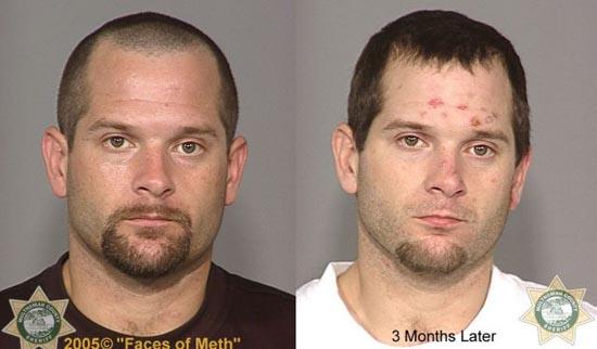 Άνθρωποι πριν και μετά την χρήση ναρκωτικών (10)