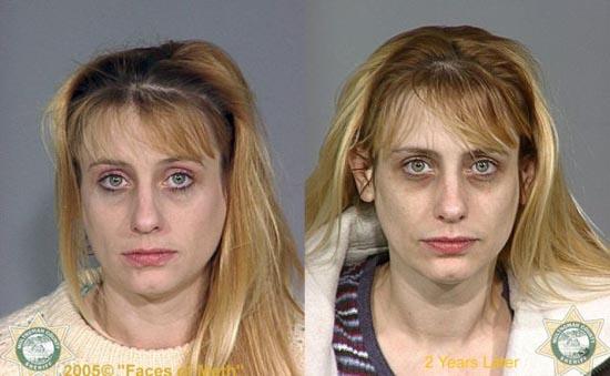 Άνθρωποι πριν και μετά την χρήση ναρκωτικών (13)