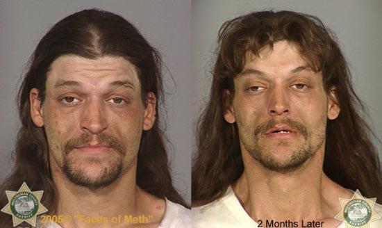 Άνθρωποι πριν και μετά την χρήση ναρκωτικών (14)