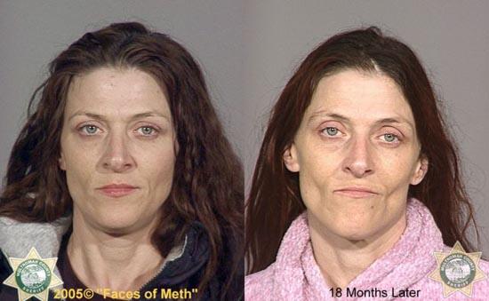 Άνθρωποι πριν και μετά την χρήση ναρκωτικών (19)