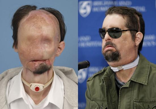 Φωτογραφία της ημέρας: Μεταμόσχευση προσώπου (Πριν & Μετά)