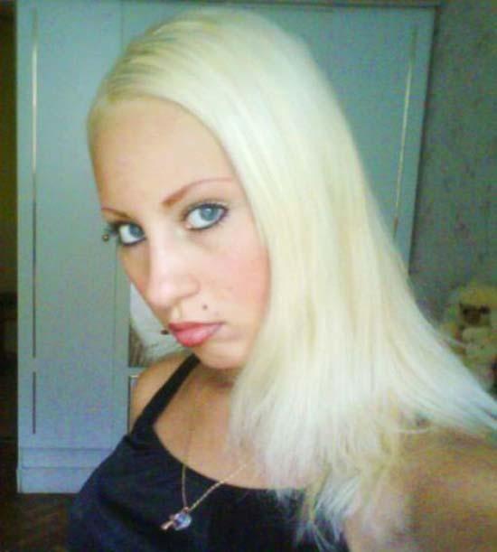 Τραγική μεταμόρφωση μιας όμορφης κοπέλας (1)