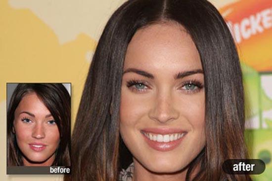 Celebrities πριν και μετά την πλαστική (3)