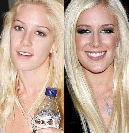 Celebrities χωρίς make up (22)
