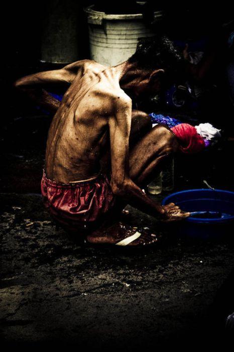 Τα πρόσωπα της φτώχειας (25)