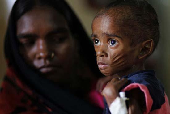 Τα πρόσωπα της φτώχειας (16)