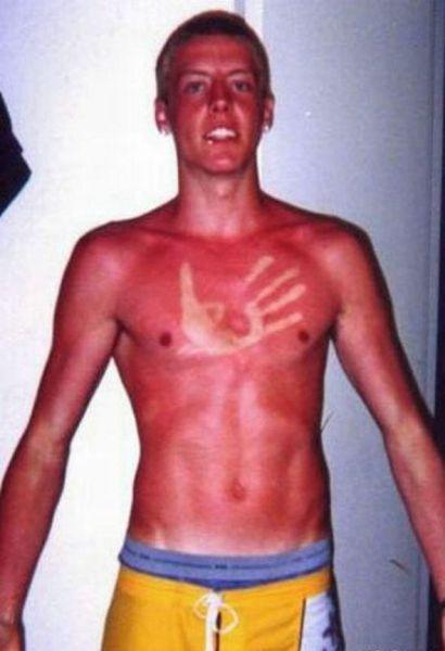 Όταν η ηλιοθεραπεία έχει «στραβά» αποτελέσματα... (15)