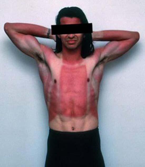 Όταν η ηλιοθεραπεία έχει «στραβά» αποτελέσματα... (29)