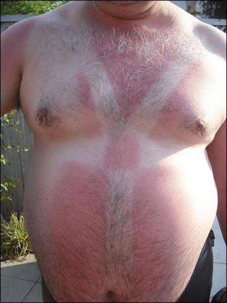 Όταν η ηλιοθεραπεία έχει «στραβά» αποτελέσματα... (28)