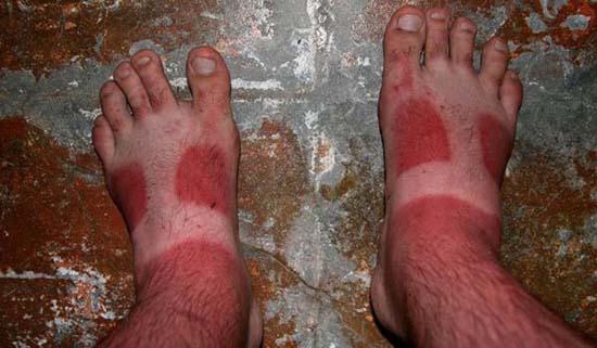 Όταν η ηλιοθεραπεία έχει «στραβά» αποτελέσματα... (27)