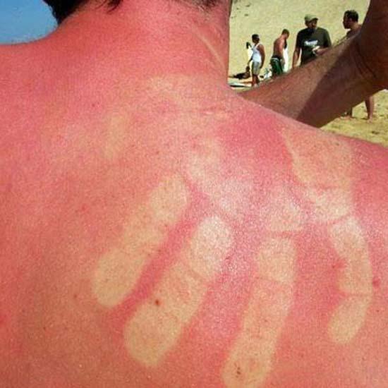 Όταν η ηλιοθεραπεία έχει «στραβά» αποτελέσματα... (16)