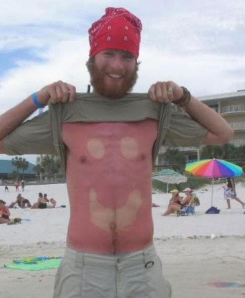Όταν η ηλιοθεραπεία έχει «στραβά» αποτελέσματα... (13)