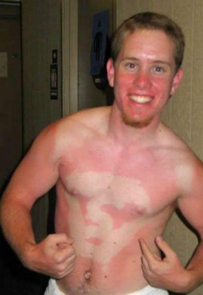 Όταν η ηλιοθεραπεία έχει «στραβά» αποτελέσματα... (11)