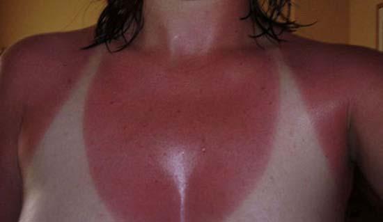 Όταν η ηλιοθεραπεία έχει «στραβά» αποτελέσματα... (8)