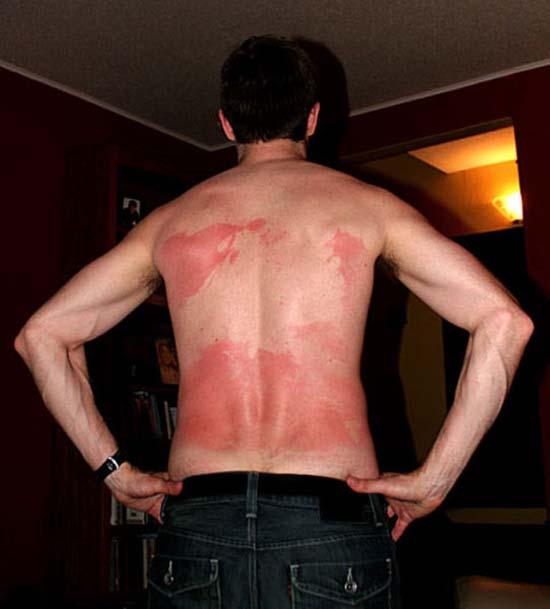 Όταν η ηλιοθεραπεία έχει «στραβά» αποτελέσματα... (7)
