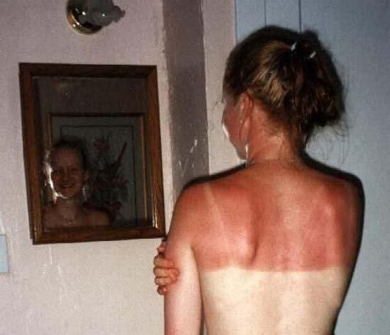 Όταν η ηλιοθεραπεία έχει «στραβά» αποτελέσματα... (5)