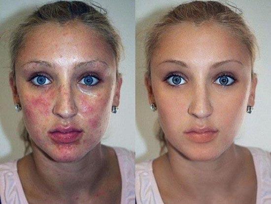 Πριν & μετά το Photoshop (18)