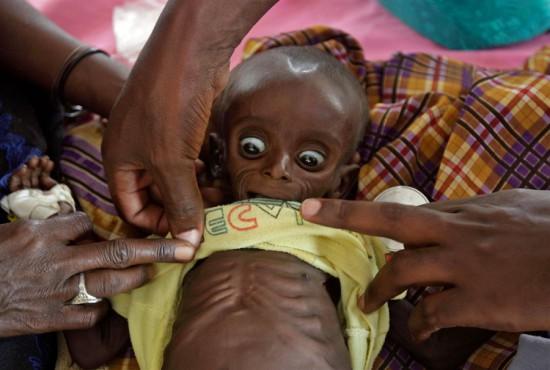 Φωτογραφία της ημέρας: Λιμοκτονία