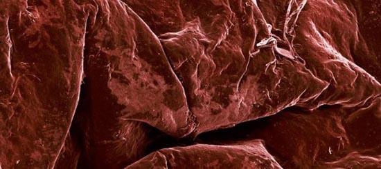 Τροφές κάτω από το μικροσκόπιο (10)