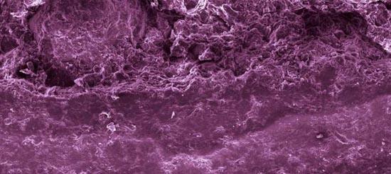 Τροφές κάτω από το μικροσκόπιο (11)