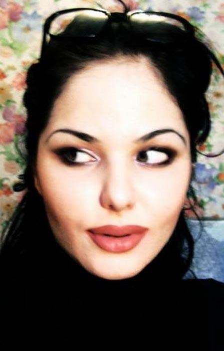Μια κοπέλα που κατέστρεψε το όμορφο πρόσωπο της (3)