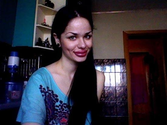 Μια κοπέλα που κατέστρεψε το όμορφο πρόσωπο της (7)