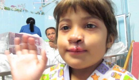 Επιχείρηση «Χαμόγελο»: Η συγκινητική μεταμόρφωση ενός κοριτσιού