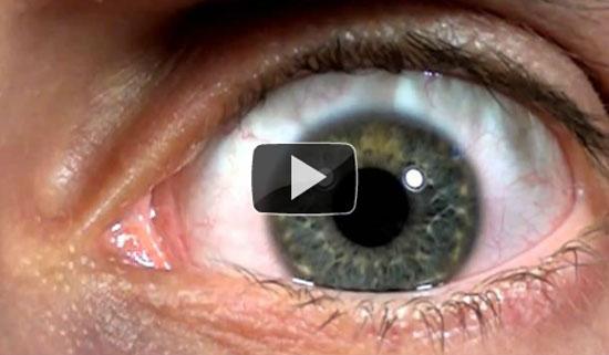 Το ανθρώπινο μάτι σε αργή κίνηση