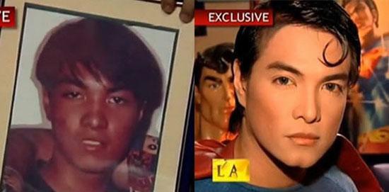 Έκανε πλαστική για να μοιάζει στον Superman! (8)