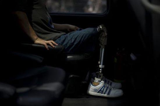Έχασε τα πόδια του άλλά όχι και τη θέληση για ζωή (3)