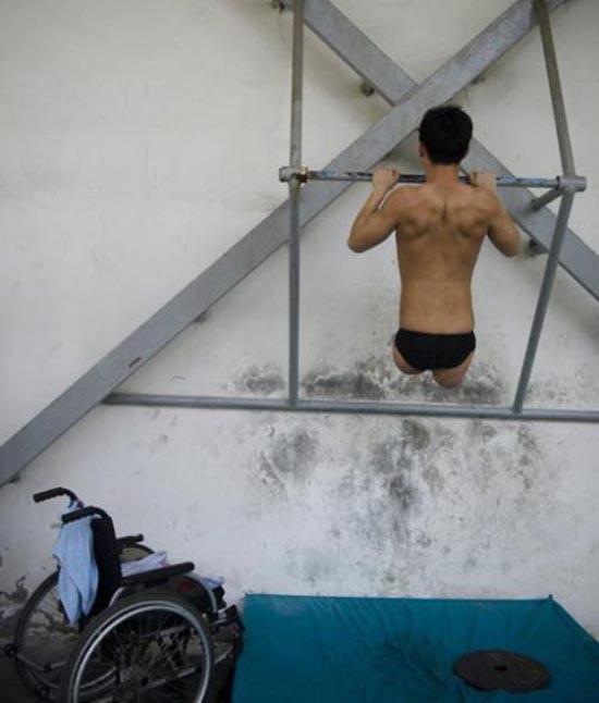 Έχασε τα πόδια του άλλά όχι και τη θέληση για ζωή (4)