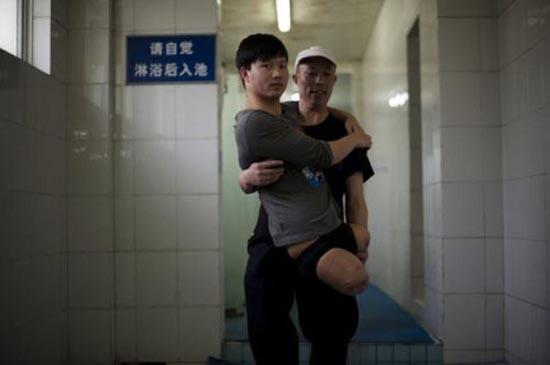 Έχασε τα πόδια του άλλά όχι και τη θέληση για ζωή (7)