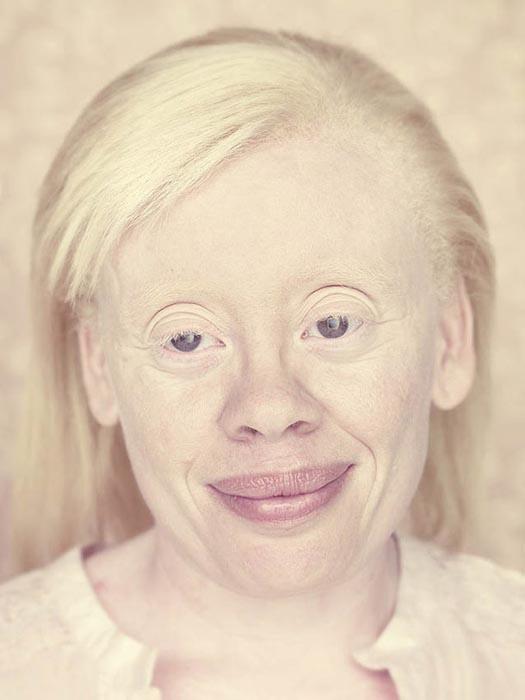Albino (2)