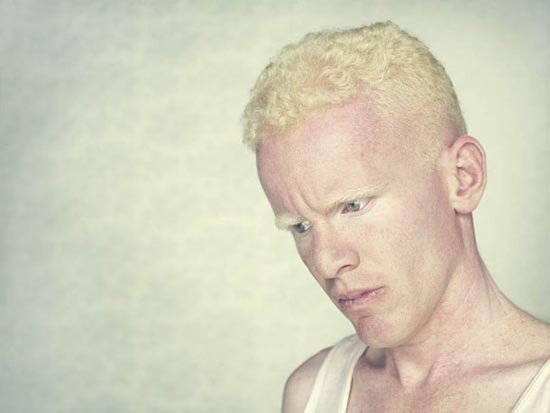 Albino (4)