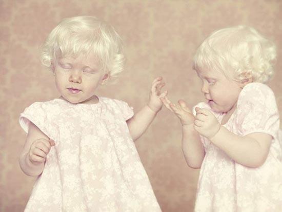 Albino (6)