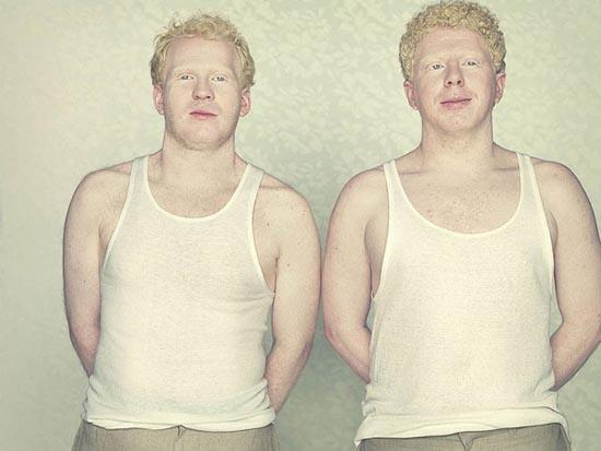 Albino (13)
