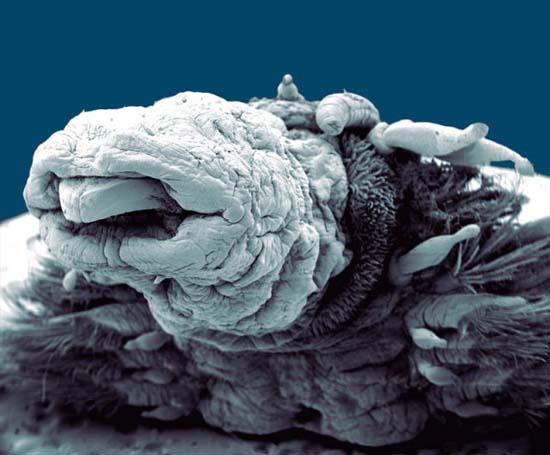 Εκπληκτικές εικόνες από μικροσκόπιο (7)