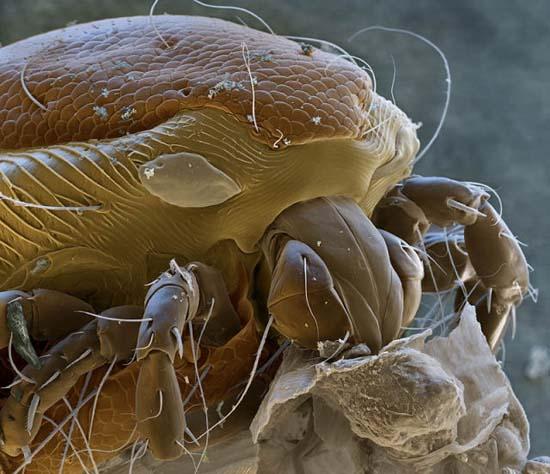 Εκπληκτικές εικόνες από μικροσκόπιο (9)
